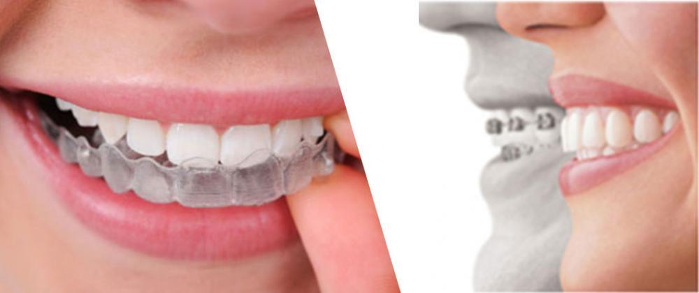 nevidni zobni aparat snemljiv9